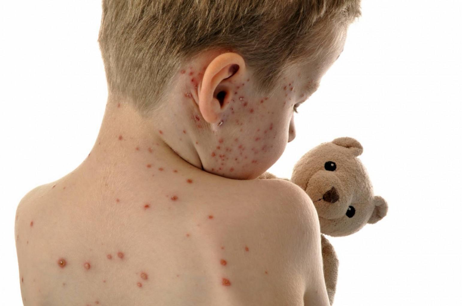 ALERTA! Departamento de Salud confirma caso de sarampión en Oklahoma