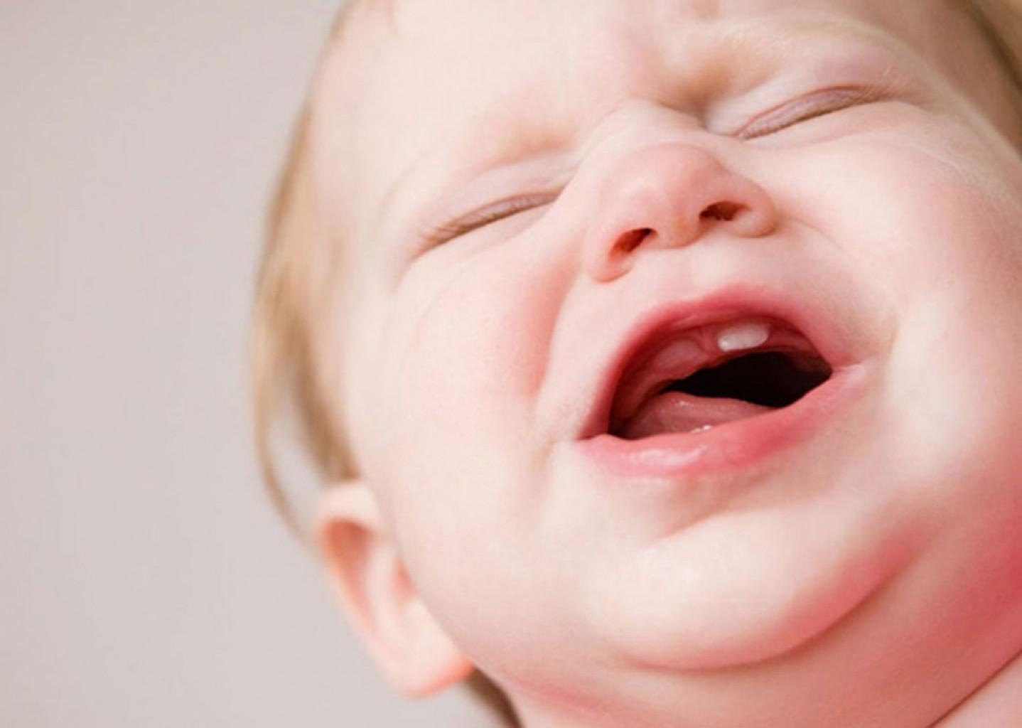 ¿Deben medicarse las encías de los bebés durante la dentición? No
