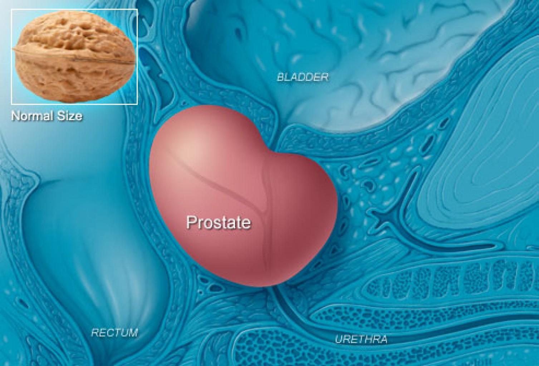 Creando conciencia del cáncer  de próstata